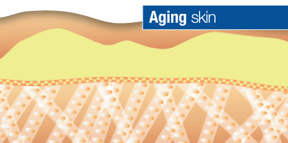 Glycation Aging Skin